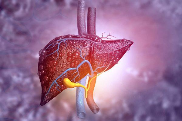 Hepatitis, enfermedad silente que desencadena una cirrosis