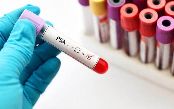 Mes de la Concientización sobre el Cáncer de Próstata